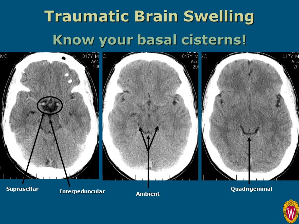 Traumatic Brain Swelling Know your basal cisterns! Quadrigeminal Interpeduncular Suprasellar Ambient