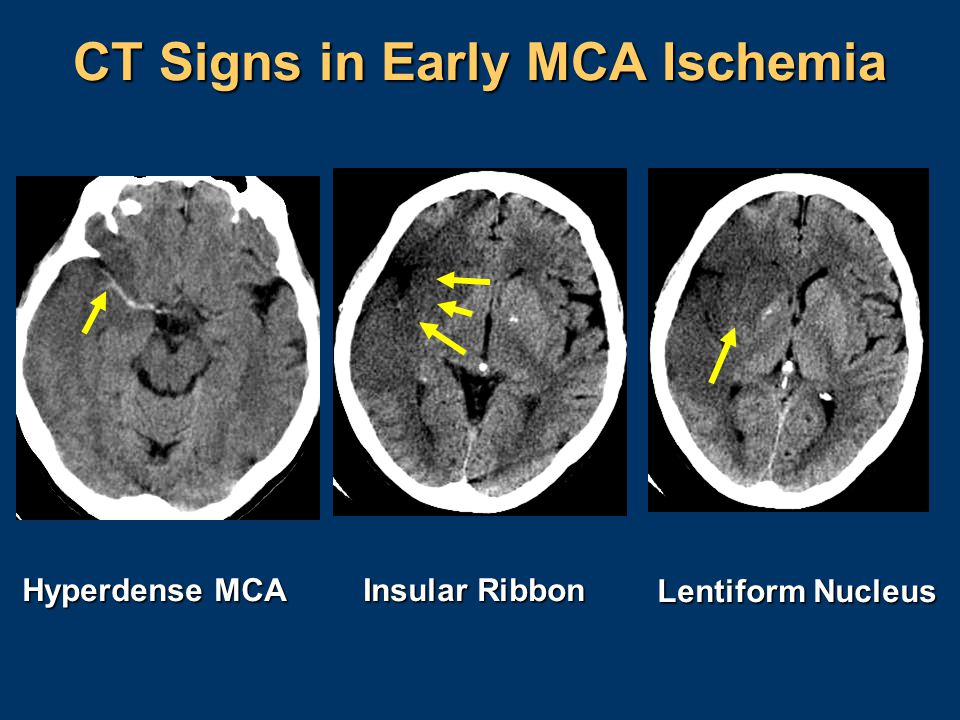 CT Signs in Early MCA Ischemia Hyperdense MCA Insular Ribbon Lentiform Nucleus