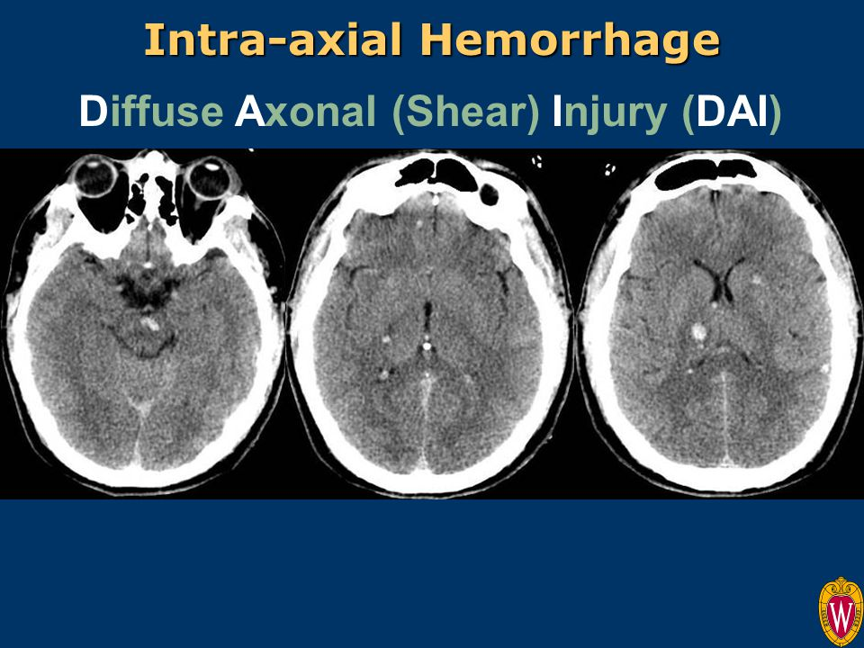 Diffuse Axonal (Shear) Injury (DAI) Intra-axial Hemorrhage