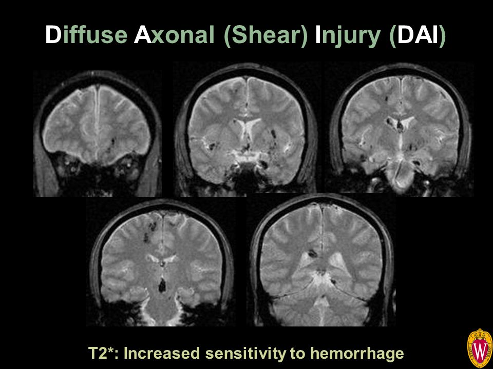 Diffuse Axonal (Shear) Injury (DAI) T2*: Increased sensitivity to hemorrhage