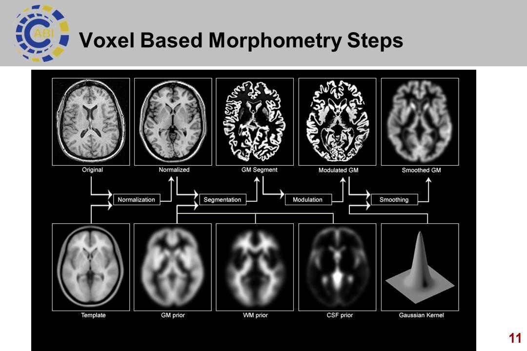 11 Voxel Based Morphometry Steps