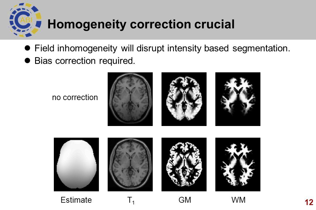 12 Homogeneity correction crucial Field inhomogeneity will disrupt intensity based segmentation. Bias correction required. no correction T1T1 WMGMEsti