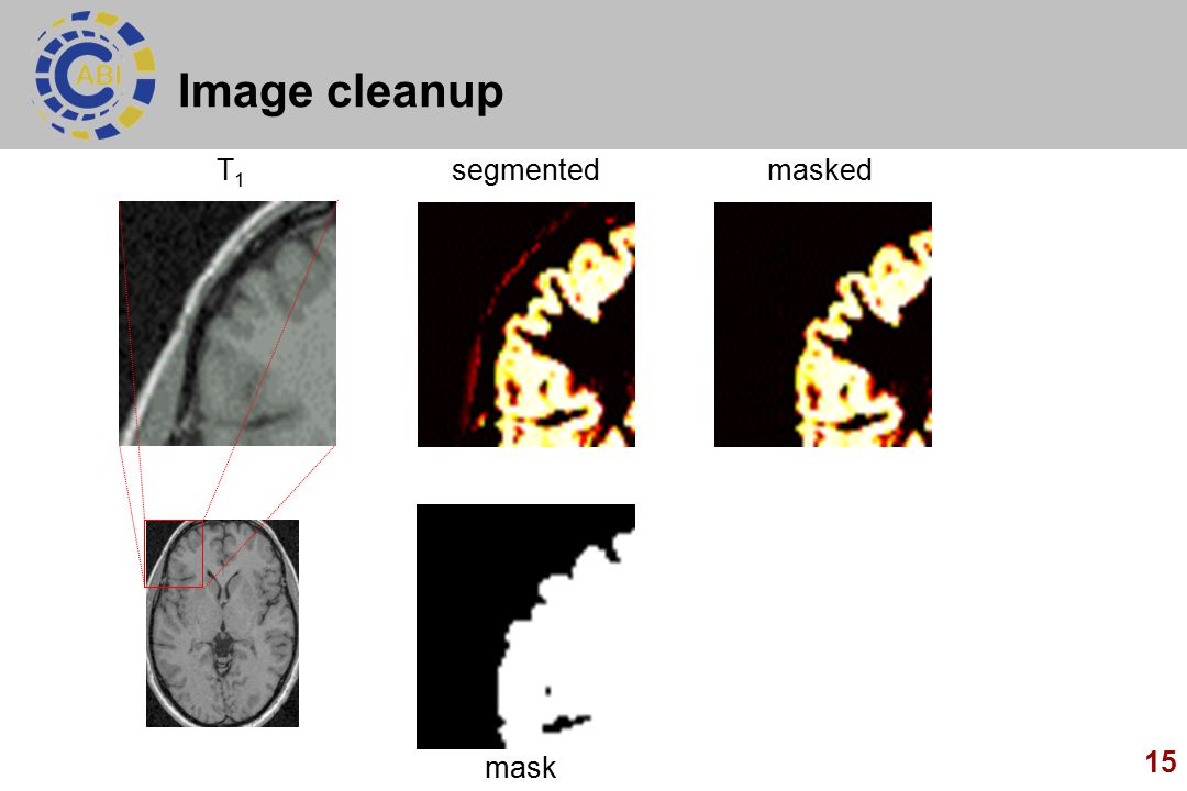 15 Image cleanup segmented mask maskedT1T1