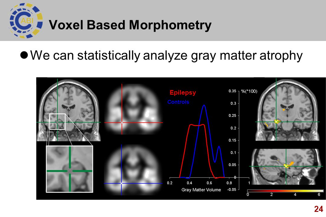 24 Voxel Based Morphometry We can statistically analyze gray matter atrophy Epilepsy