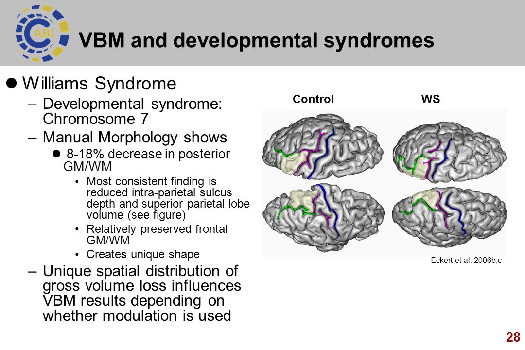 28 VBM and developmental syndromes Williams Syndrome –Developmental syndrome: Chromosome 7 –Manual Morphology shows 8-18% decrease in posterior GM/WM Most consistent finding is reduced intra-parietal sulcus depth and superior parietal lobe volume (see figure) Relatively preserved frontal GM/WM Creates unique shape –Unique spatial distribution of gross volume loss influences VBM results depending on whether modulation is used Eckert et al.