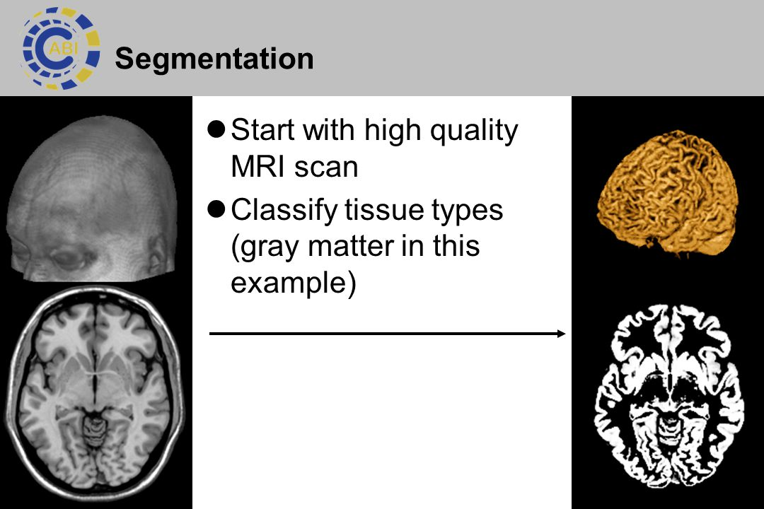 6 Segmentation Start with high quality MRI scan Classify tissue types (gray matter in this example)