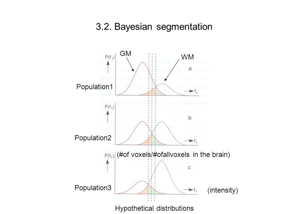 3.2.Bayes' classifier For each voxel, x,y,z: Assume K tissue types (for eg.