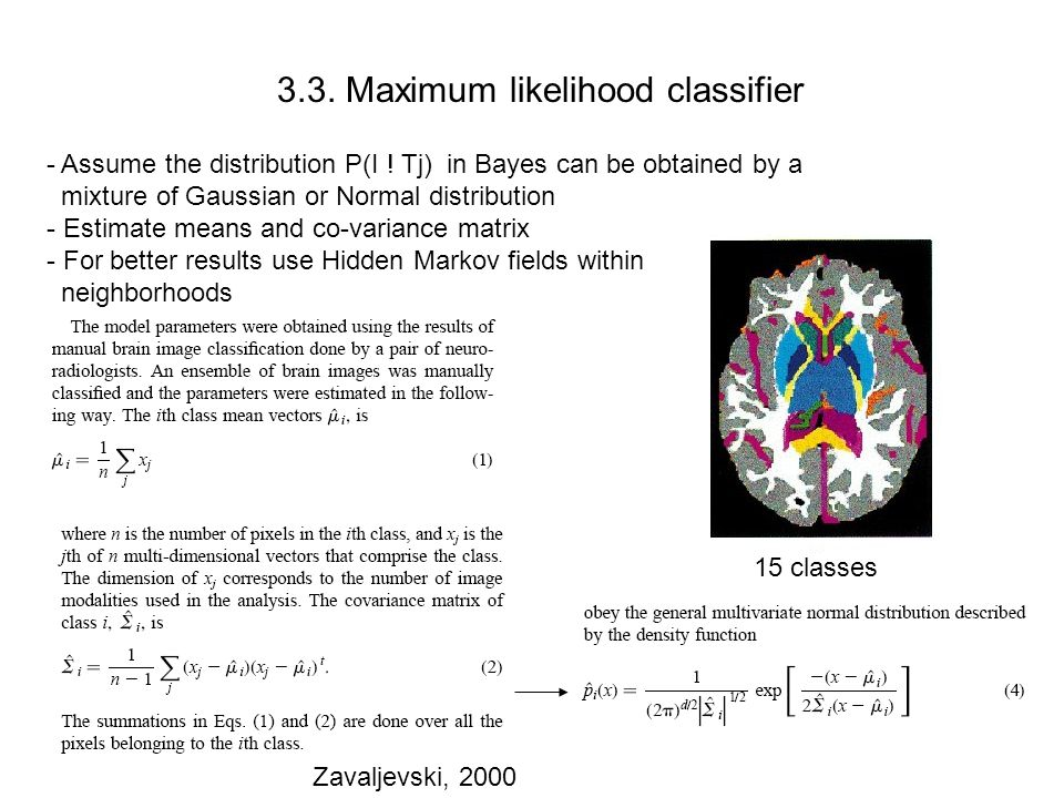 3.3. Maximum likelihood classifier Zavaljevski, 2000 Normal subject Stroke patient