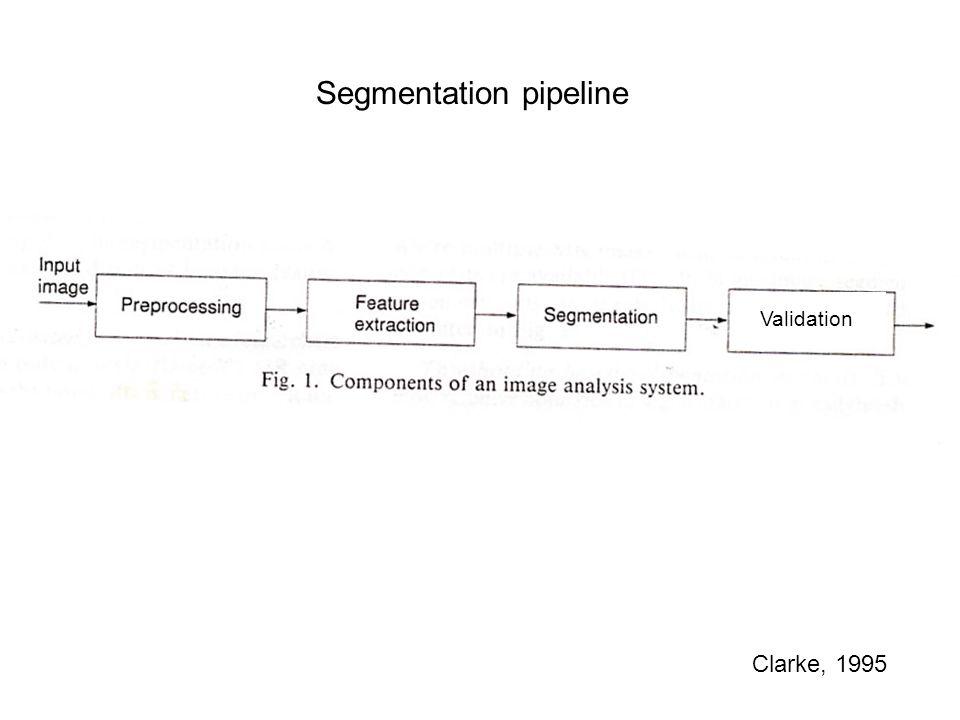 1. Preprocessing 1.1. Brain extraction 1.2. Removal of field inhomogeneities (bias-field)