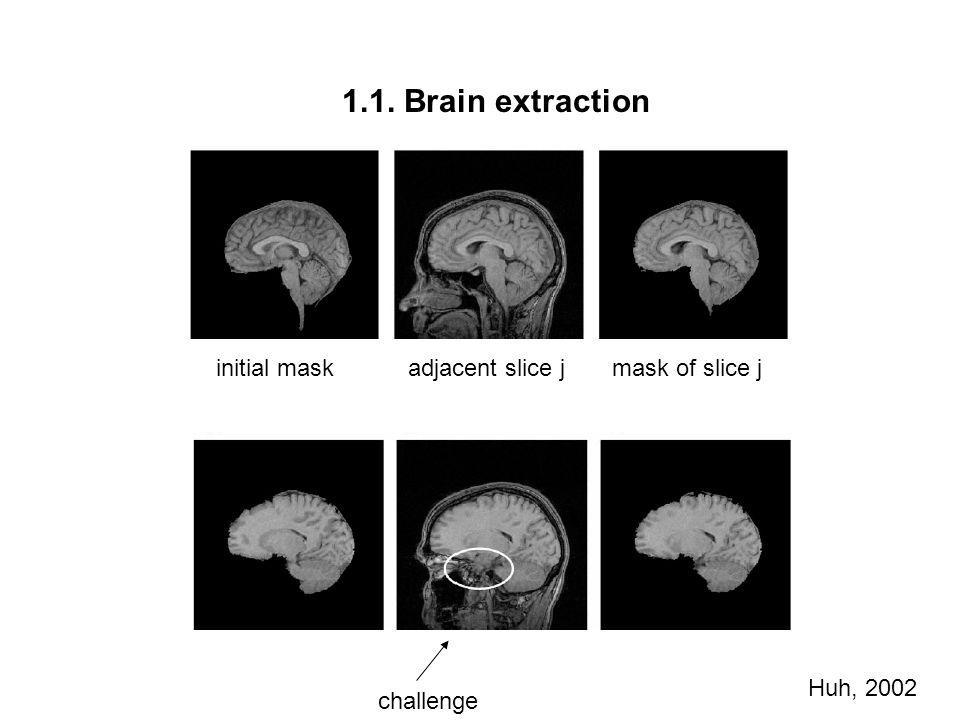 1.1. Brain extraction restoring truncated boundary