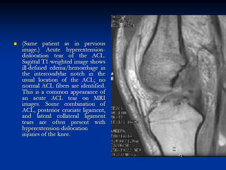 (Same patient as in previous image.) Acute hyperextension- dislocation tear of the ACL. Sagittal T1-weighted image shows ill-defined edema/hemorrhage