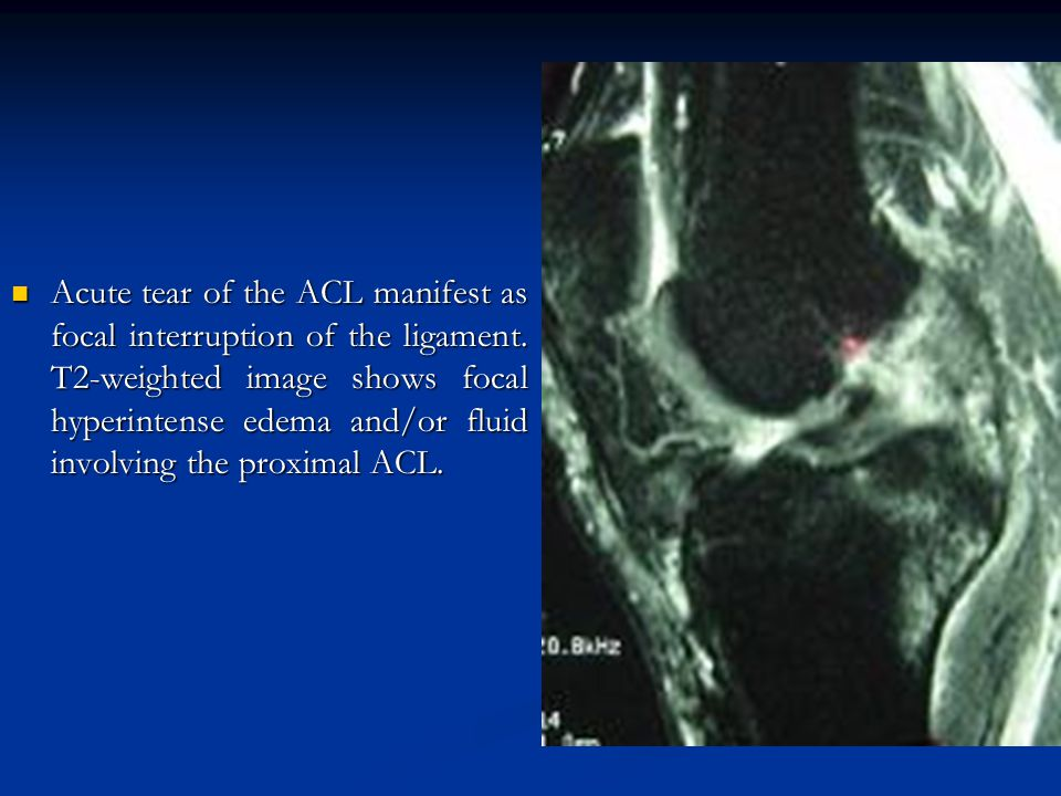Acute tear of the ACL manifest as focal interruption of the ligament. T2-weighted image shows focal hyperintense edema and/or fluid involving the prox