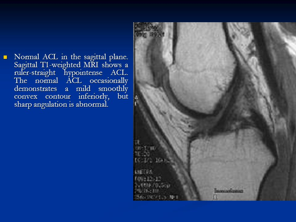 Normal ACL in the sagittal plane. Sagittal T1-weighted MRI shows a ruler-straight hypointense ACL. The normal ACL occasionally demonstrates a mild smo