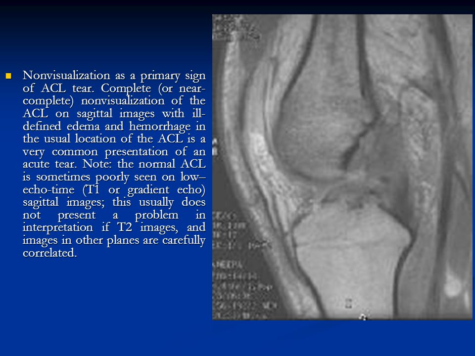 Nonvisualization as a primary sign of ACL tear. Complete (or near- complete) nonvisualization of the ACL on sagittal images with ill- defined edema an