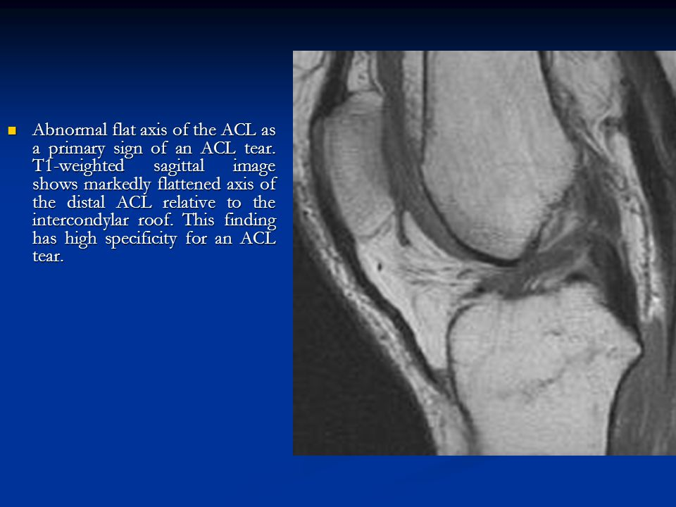 Abnormal flat axis of the ACL as a primary sign of an ACL tear. T1-weighted sagittal image shows markedly flattened axis of the distal ACL relative to