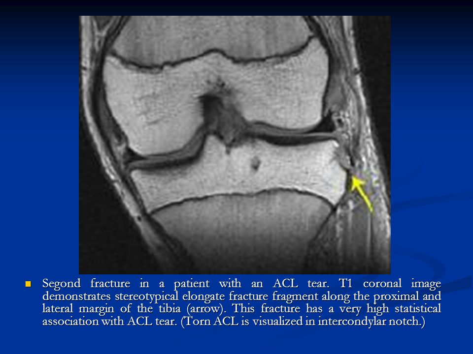 Segond fracture in a patient with an ACL tear. T1 coronal image demonstrates stereotypical elongate fracture fragment along the proximal and lateral m