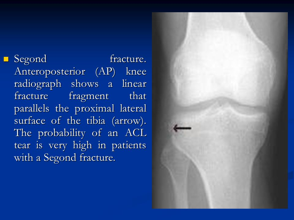Segond fracture. Anteroposterior (AP) knee radiograph shows a linear fracture fragment that parallels the proximal lateral surface of the tibia (arrow
