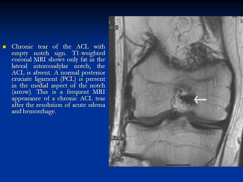 Chronic tear of the ACL with empty notch sign. T1-weighted coronal MRI shows only fat in the lateral intercondylar notch; the ACL is absent. A normal