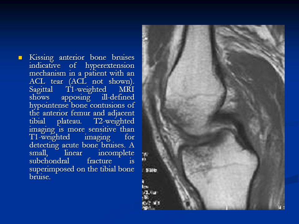 Kissing anterior bone bruises indicative of hyperextension mechanism in a patient with an ACL tear (ACL not shown). Sagittal T1-weighted MRI shows app