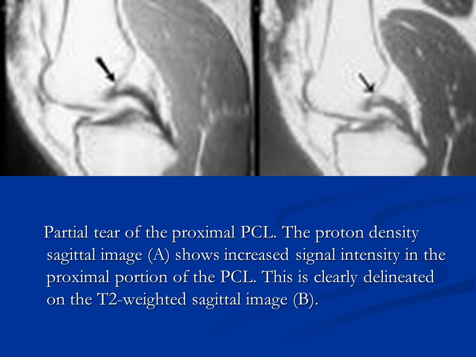 Partial tear of the proximal PCL. The proton density sagittal image (A) shows increased signal intensity in the proximal portion of the PCL. This is c