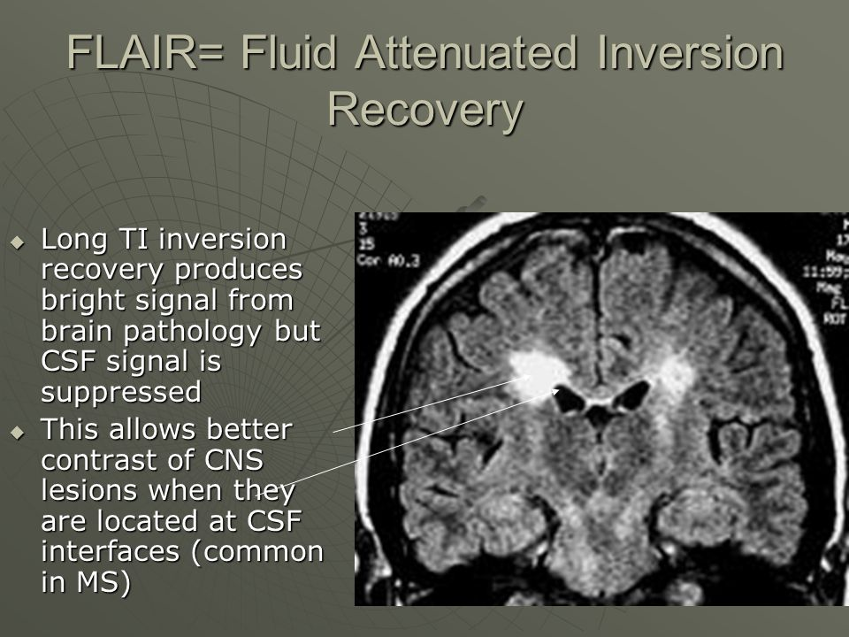 FLAIR= Fluid Attenuated Inversion Recovery  Long TI inversion recovery produces bright signal from brain pathology but CSF signal is suppressed  Thi