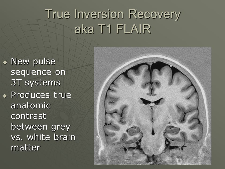 True Inversion Recovery aka T1 FLAIR  New pulse sequence on 3T systems  Produces true anatomic contrast between grey vs. white brain matter