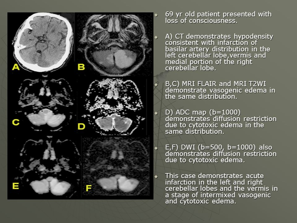  69 yr old patient presented with loss of consciousness.  A) CT demonstrates hypodensity consistent with infarction of basilar artery distribution i