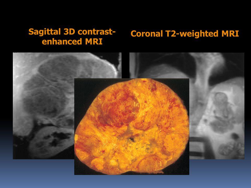 Sagittal 3D contrast- enhanced MRI Coronal T2-weighted MRI