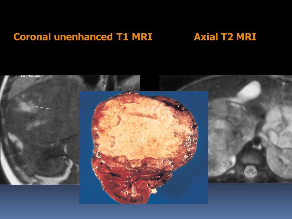 Coronal unenhanced T1 MRIAxial T2 MRI