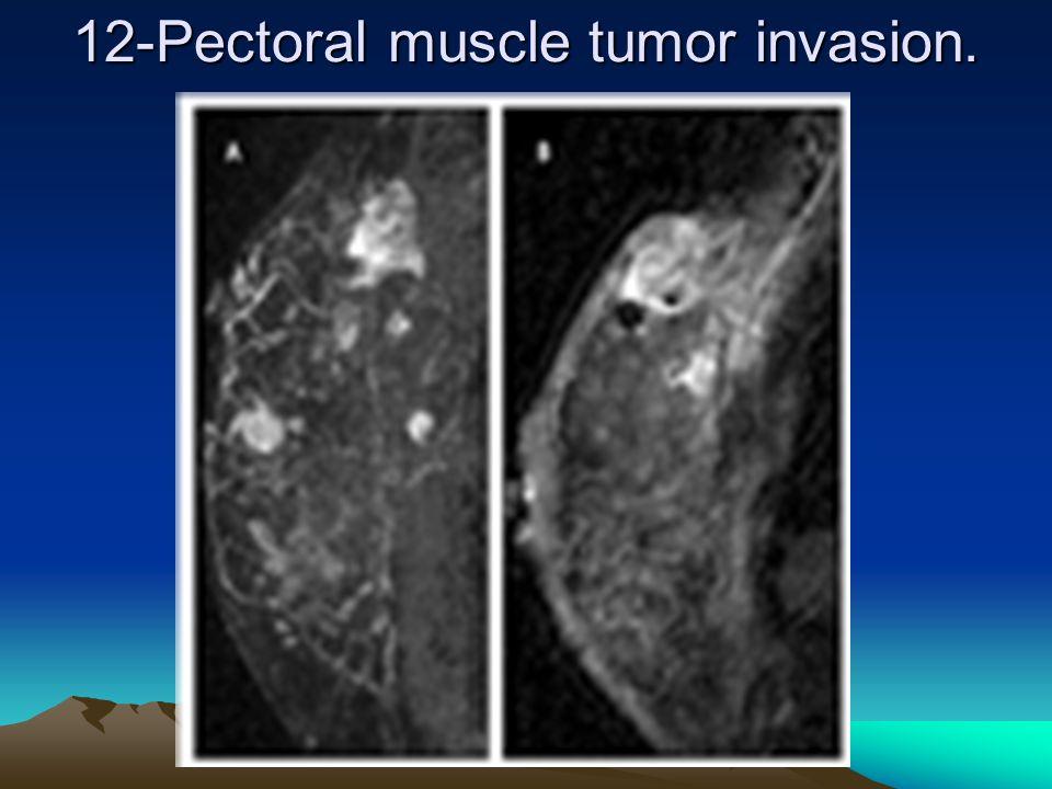 12-Pectoral muscle tumor invasion..