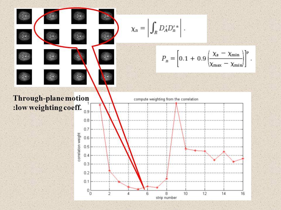 Through-plane motion :low weighting coeff.