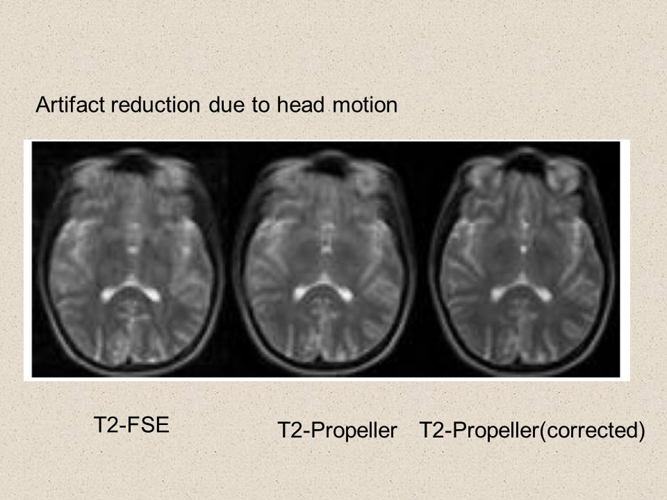 T2-FSE T2-PropellerT2-Propeller(corrected) Artifact reduction due to head motion