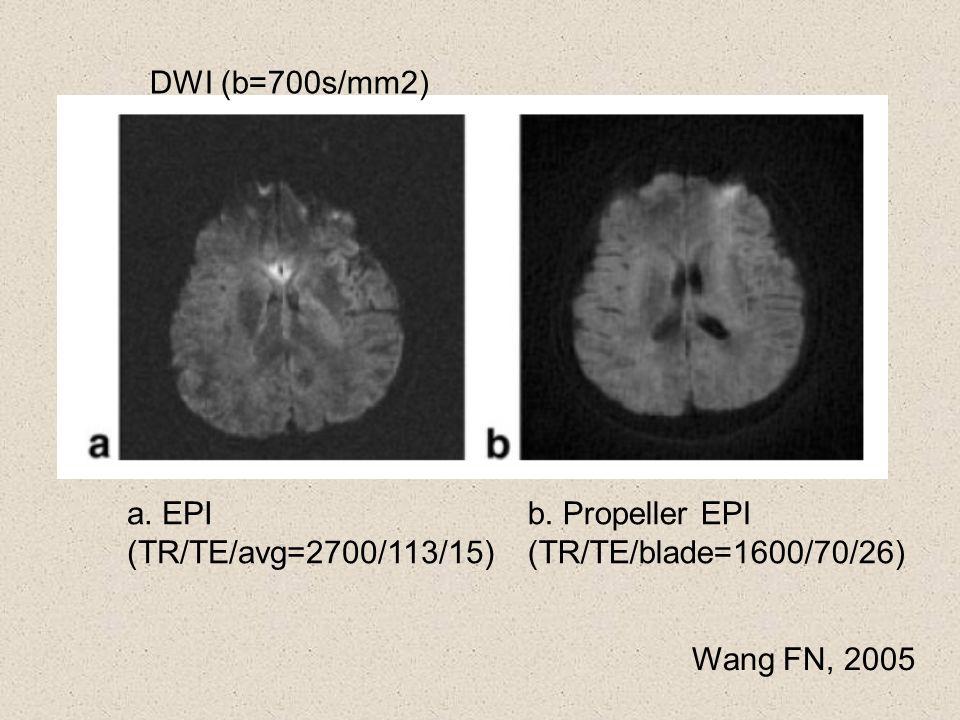 DWI (b=700s/mm2) a. EPI (TR/TE/avg=2700/113/15) b. Propeller EPI (TR/TE/blade=1600/70/26) Wang FN, 2005