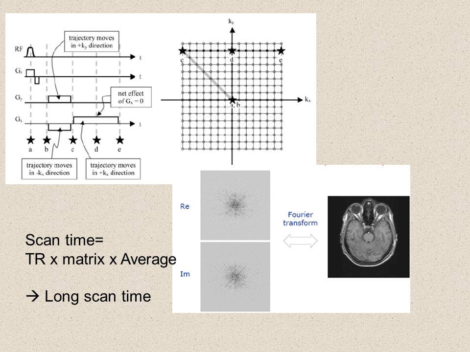MR image reconstruction under the assumption of object's motion-free condition during whole k space coverage