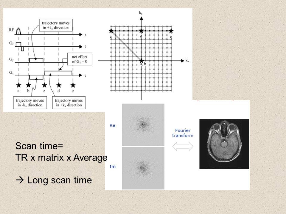 Scan time= TR x matrix x Average  Long scan time