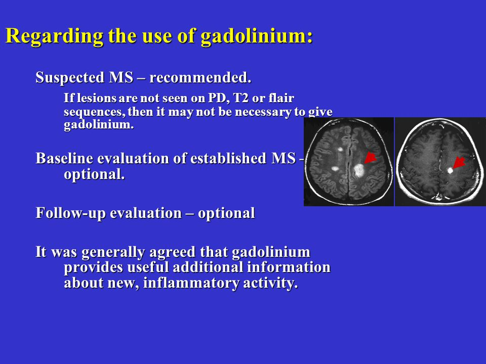 Regarding the use of gadolinium: Suspected MS – recommended.