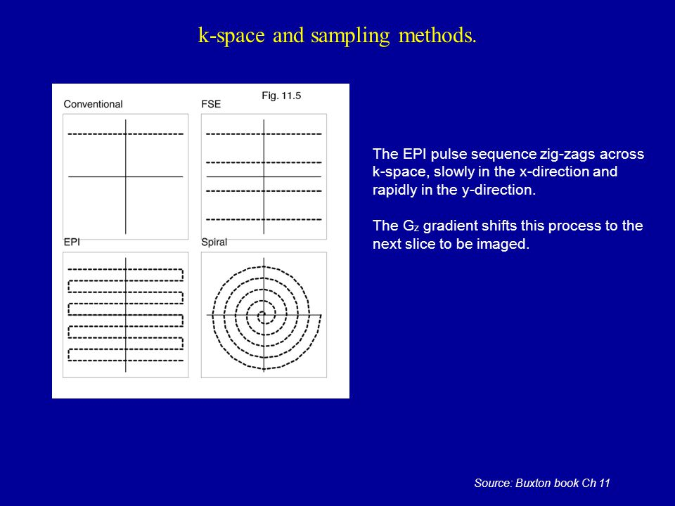 k-space and sampling methods. The EPI pulse sequence zig-zags across k-space, slowly in the x-direction and rapidly in the y-direction. The G z gradie