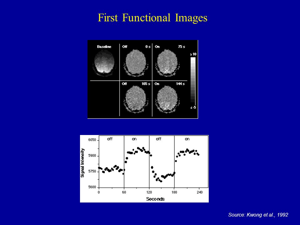 First Functional Images Source: Kwong et al., 1992
