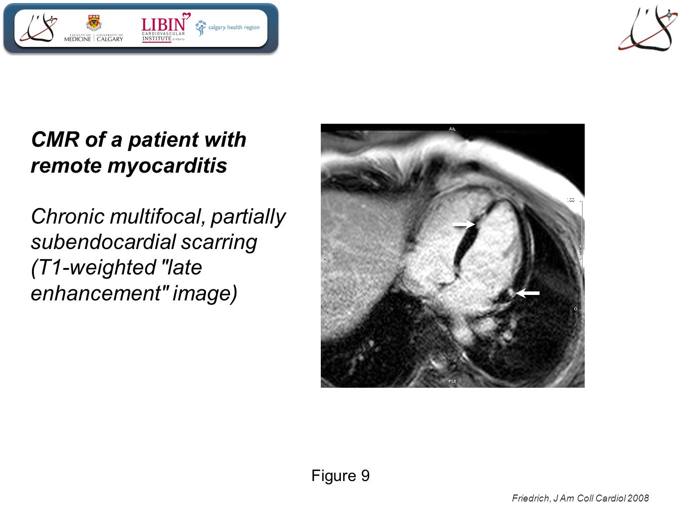 Friedrich, J Am Coll Cardiol 2008 CMR of a patient with remote myocarditis Chronic multifocal, partially subendocardial scarring (T1-weighted late enhancement image) Figure 9
