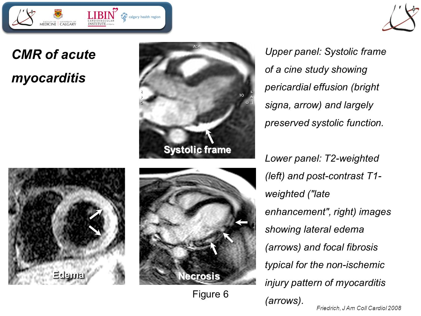 Friedrich, J Am Coll Cardiol 2008 Figure 6 EdemaEdemaNecrosisNecrosis Upper panel: Systolic frame of a cine study showing pericardial effusion (bright signa, arrow) and largely preserved systolic function.