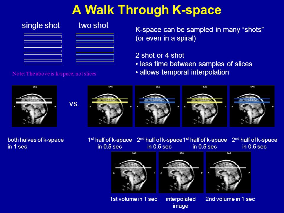 """A Walk Through K-space K-space can be sampled in many """"shots"""" (or even in a spiral) 2 shot or 4 shot less time between samples of slices allows tempor"""