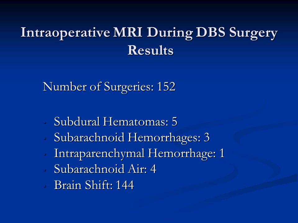Intraoperative MRI During DBS Surgery Results Number of Surgeries: 152 Subdural Hematomas: 5 Subdural Hematomas: 5 Subarachnoid Hemorrhages: 3 Subarac