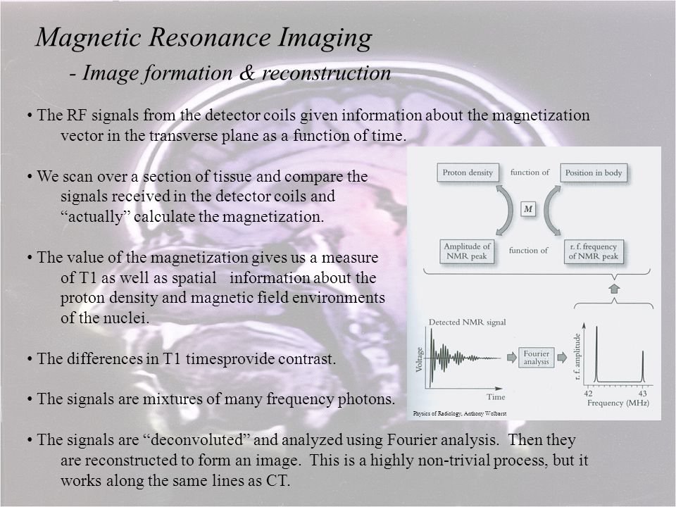 Magnetic Resonance Imaging - Image formation & reconstruction The RF signals from the detector coils given information about the magnetization vector