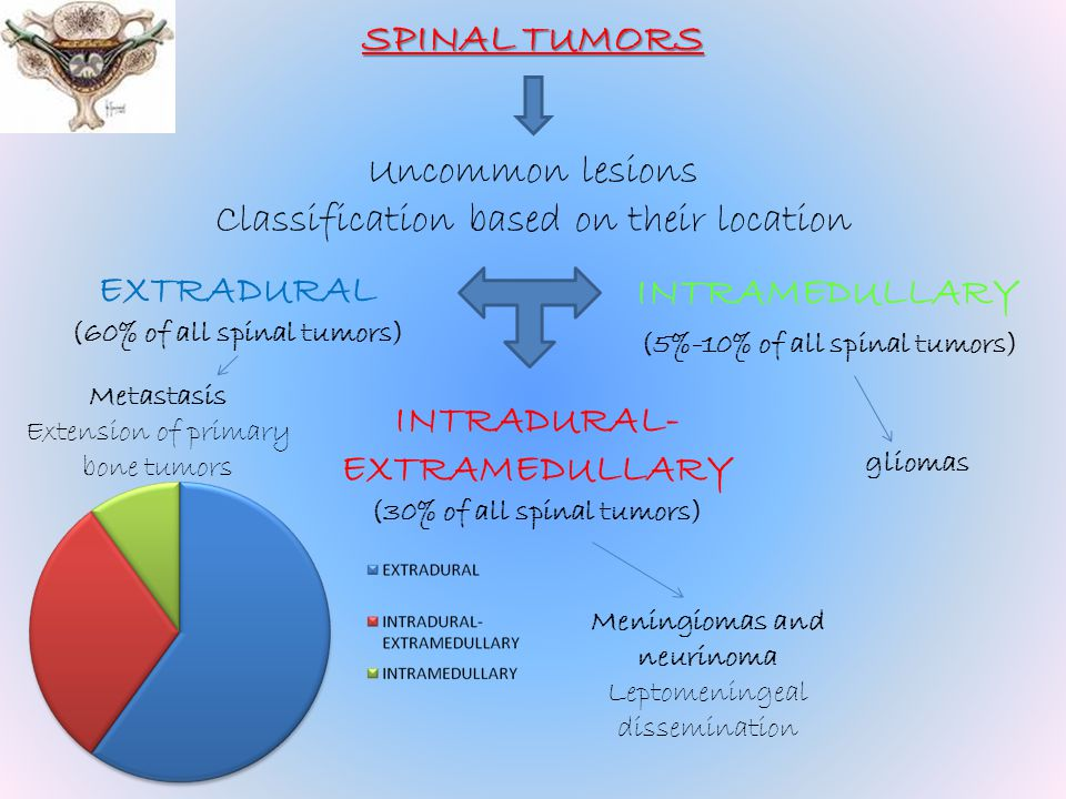 SPINAL TUMORS Uncommon lesions Classification based on their location EXTRADURAL (60% of all spinal tumors) INTRAMEDULLARY (5%-10% of all spinal tumor