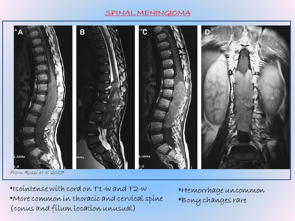 From Rossi et al 2007 SPINAL MENINGIOMA Isointense with cord on T1-w and T2-w More common in thoracic and cervical spine (conus and filum location unu