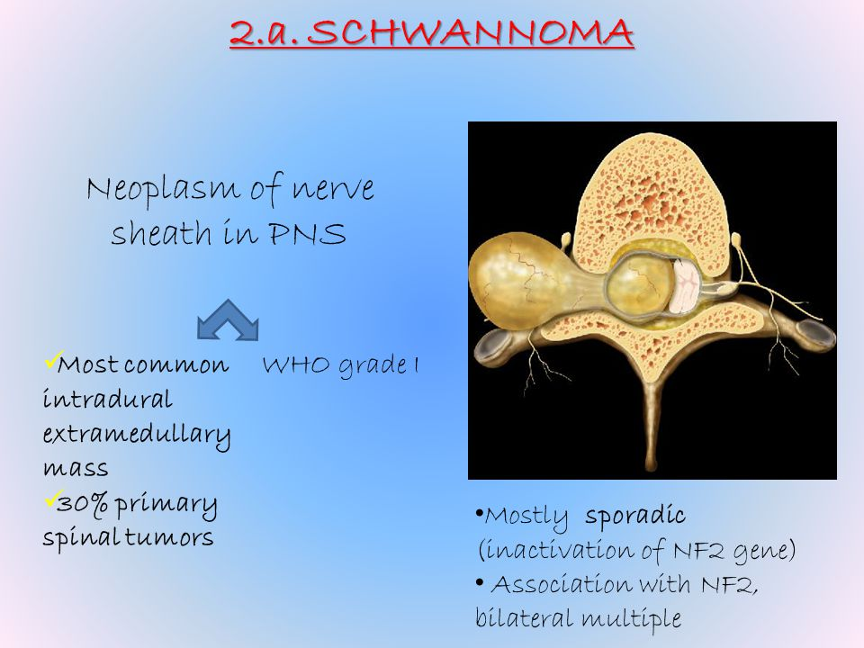 2.a. SCHWANNOMA Neoplasm of nerve sheath in PNS Most common intradural extramedullary mass 30% primary spinal tumors Mostly sporadic (inactivation of