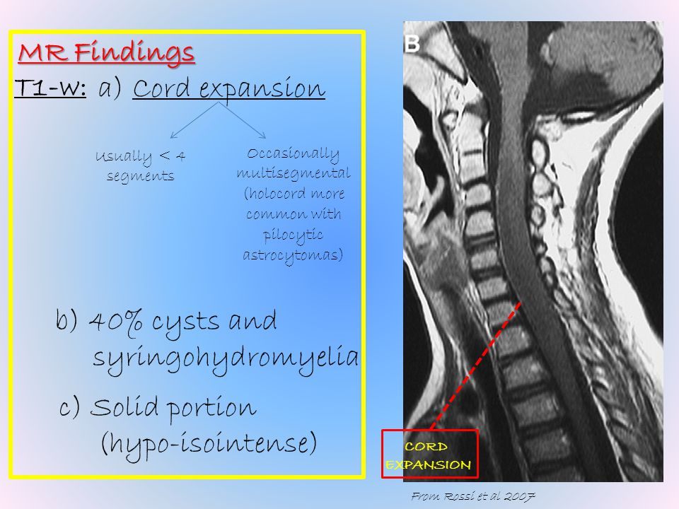 Radiological features T1-w post-contrast: a)Prominent c.e. b)May see enhancing dural tail C.E.