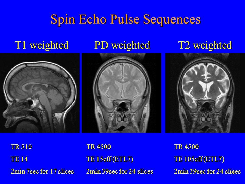 14 Spin Echo Pulse Sequences Spin Echo Pulse Sequences T2 weighted PD weighted T1 weighted TR 510 TE 14 2min 7sec for 17 slices TR 4500 TE 15eff (ETL7