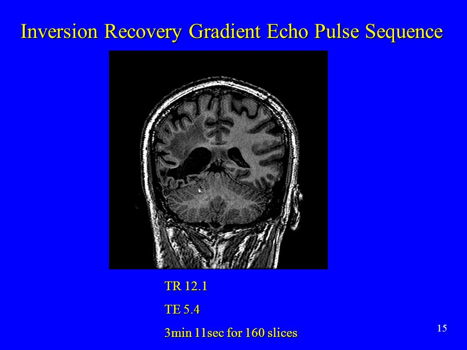 15 Inversion Recovery Gradient Echo Pulse Sequence TR 12.1 TE 5.4 3min 11sec for 160 slices