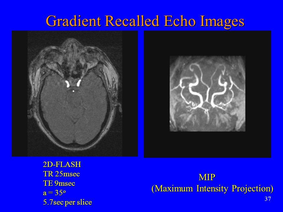 37 MIP MIP (Maximum Intensity Projection) Gradient Recalled Echo Images 2D-FLASH TR 25msec TE 9msec a = 35 o 5.7sec per slice